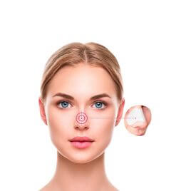 x6 Patch anti-points noirs pour le nez Nose Strip